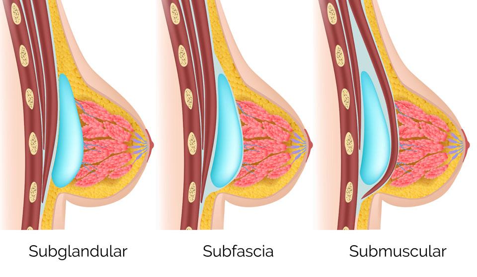 Mamoplastia de aumento de senos Cirugía Plástica Dra Carmen Huertas Cirujano Plástico;