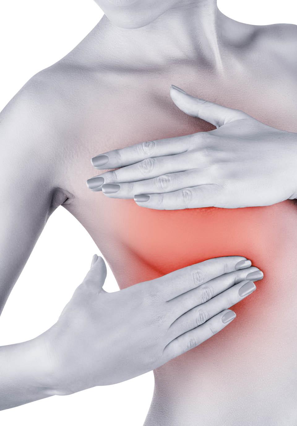 Mastectomia y reconstrucción mamaria | Cirujano Plástico Dra. Carmen Huertas
